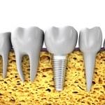 Jaw bone — Stock Photo #52303785