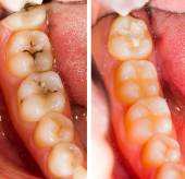 Before and after dental treatment — Stock Photo