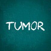 Tumor en pizarra — Foto de Stock