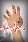 Hand expressing heart attack - Medical concept — Stock Photo