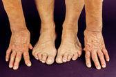 Rrheumatoid arthritis hand and toe deformities — Stock Photo
