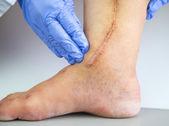 Human leg with postoperative scar of cardiac surgery — Stock Photo