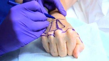Patient receiving cosmetic surgery of hands — Stock Video