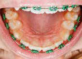 Teeth with braces — Stock Photo