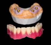 Removable denture — Stock Photo