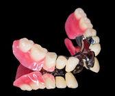 Protesi dentale rimovibile — Foto Stock