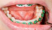 Teeth with braces — Stockfoto
