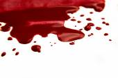 Blood pool (puddle) — Stock Photo