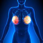Breast Cancer - Female Anatomy - tumor highlight — Stock Photo