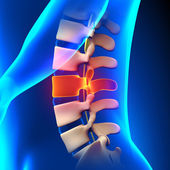 L3 Disc - Lumbar Spine — Stock Photo