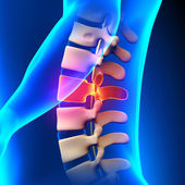 L2 Disc - Lumbar Spine — Stock Photo