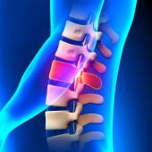 L1 Disc - Lumbar Spine — Stock Photo