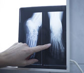 Medical doctor pointing at radiograph x-ray image — Stock Photo
