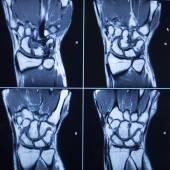 MRI scan test results wrist hand injury — Stock Photo