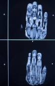 MRI scan test results hand finger injury — Stock Photo