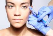Filling of wrinkles, crow's feet, injection of botox — Stock Photo
