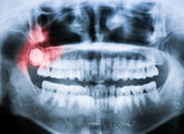 Closeup x-ray of impacted wisdom tooth — Stock Photo