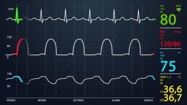 Intensive Care Unit monitor — Stock Video