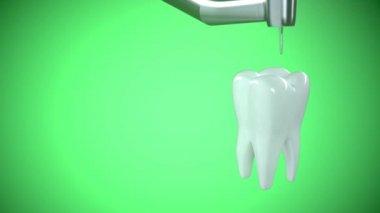 Behandling av ohälsosamma tanden med en borr. — Stockvideo