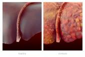 Realistic illustration of healthy and sick human livers — Stock Photo