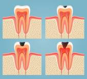 Stages of tooth decay — Stockvektor
