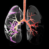 Tuberculosis in the lungs — Stock Photo