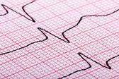 Cardiogram of heart beat — Stock Photo
