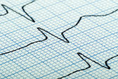 Cardiogram of heart beat — Foto Stock