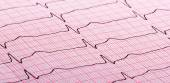 Cardiogram of heart beat — Photo