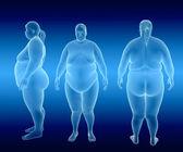 Overweight Female  — Stock Photo