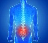 X-ray view of Spine pain - vertebrae trauma — Stock fotografie