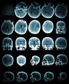Healthcare and medical wallpaper with the CT scan image — Stock Photo