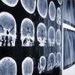 Unusual view of the MRI, X-ray images of the patient — Stock Photo #64821065