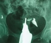 X-ray film — Stock Photo