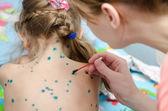 Mom misses girl zelenkoj rash of chickenpox — Stock Photo