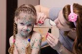 Mom cauterize zelenkoj chickenpox rash in a child — Stock Photo