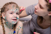 Mom misses zelenkoj rash on face of child with chickenpox — Stock Photo