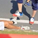 Injured runner legs — Stock Photo #71398615