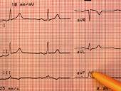 Healthy heart electrocardiogram — Стоковое фото