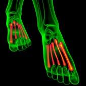 3d render medical illustration of the metatarsal bones  — Stockfoto