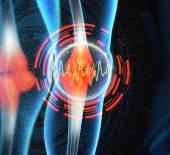Human knee pain with the anatomy of a skeleton leg — Stock Photo