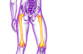3d render medical illustration of the femur bone  — Stock Photo