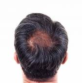 Hair loss and grey hair, Male head with hair loss symptoms back — Stock Photo