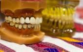 The teeth model — Stock Photo