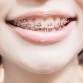 Stainless steel braces — Foto Stock