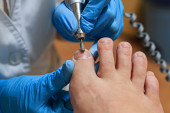 Chiropody — Stock Photo