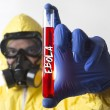 Ebola Outbreak — Stock Photo #52896647