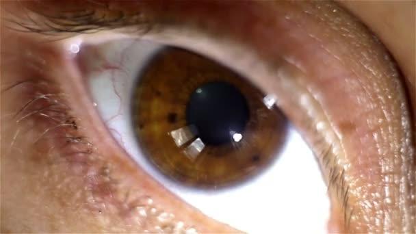 Light-flash apple of eye reaction — Vidéo