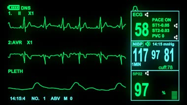 4k ECG monitor screen — Stock Video