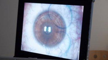Laser eye surgery — Stock Video